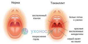 Болит горло не проходит больше двух недель