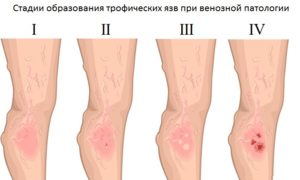 Воспаление (болячка на ноге)