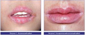 Отёк и краснота слизистой губ