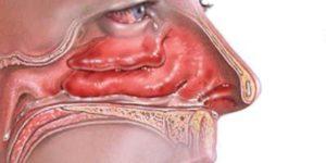Заложенность носа с той стороны, на которой спал