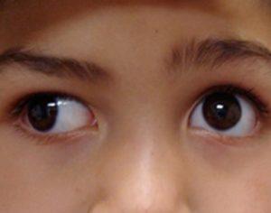 У ребенка иногда косятся глаза