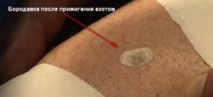 Болит рана после удаления подошвенной бородавки