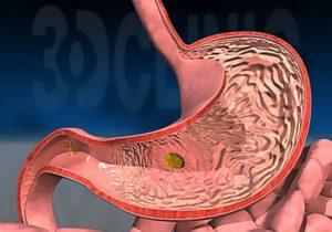 Эрозивный гастрит и желчь в желудке