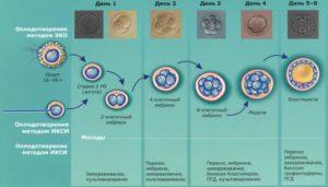 Анэмбриония при эко икси