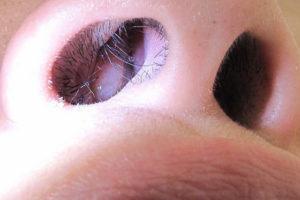 Непонятная белая точка на слизистой носа