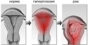 Гиперплазия эндометрия, фолликулярная киста, перименопауза, выскабливание