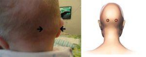 Увеличение лимфоузлов на голове у ребенка