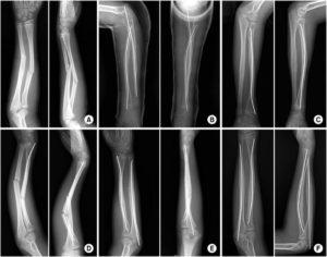 Перелом руки обеих костей