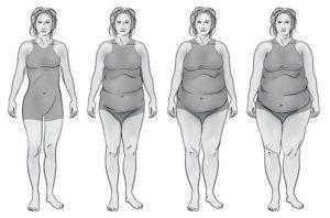 Ожирение при гипотиреозе