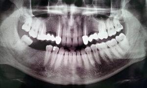 Панорамный снимок зубов расшифровка