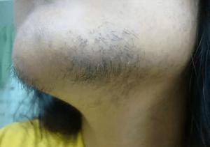 Чёрные жёсткие волосы на подбородке