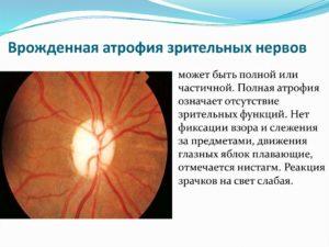 Частичная атрофия зрительных нервов инвалидность