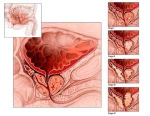 Уплотнение предстательной железы