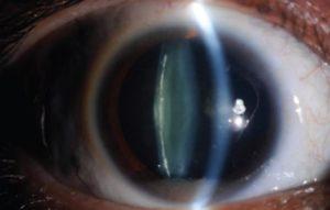 Хрусталик миол-2 при катаракте