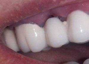 Щель между десной и зубом