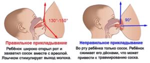Кровь из соска при кормлении грудью