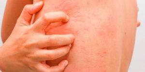 Аллергия на фолиевую кислоту