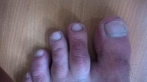 Появились красные точки на пальцах ног и болят