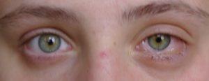 Опух белок глаза