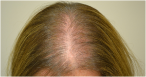 Выпадение волос после отмены ОК