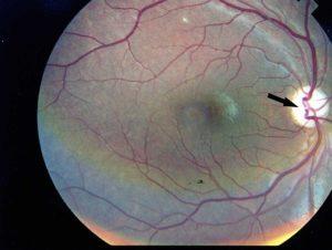 Фоновая ретинопатия и ретинальные сосудистые изменения