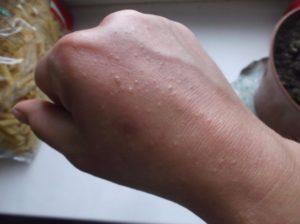 Пупырышки на руках