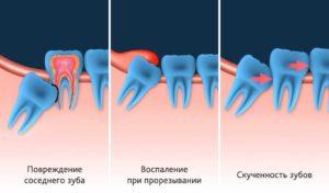 Белые точки на десне после удаления зуба мудрости