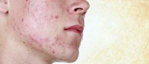 Аллергия после бритья и дерматит