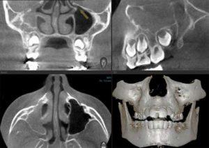 Синдром молчащего верхнечелюстного синуса