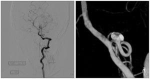 Опасен ли диагноз Кинкинг С1 сегмента левой Вса