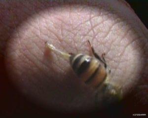 Комар укусил за головку полового члена, что делать?