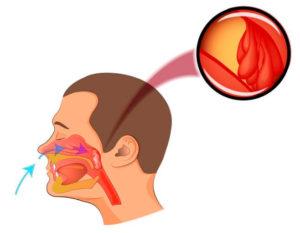 Аденоиды и субфебрильная температура