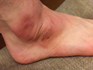 Пропала чувствительность участка кожи на ноге