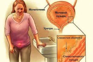 Боль при нажатии на мочевой пузырь