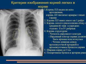 Заключение: корни тяжисты в хвостовых отделах