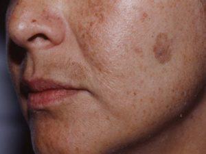 Пигментное пятно на лице стало выпуклым