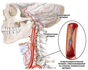 Грыжа и гипоплазия позвоночной артерии