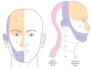 Головная боль при остеохондрозе