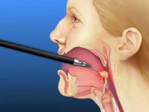 Опухоль миндалин, ком в горле