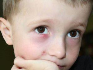 У ребенка щипят глаза