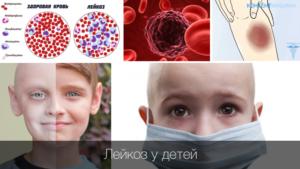 Возможна онкология или нет