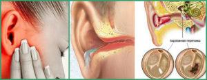 После лечения среднего отита остается заложенность в ухе