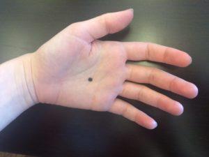 Чёрные точки на ладонях