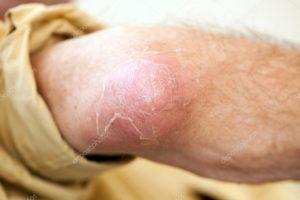 Болячки на локтях