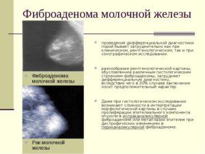 Что пропить при множественных непульпируемых фиброаденомах