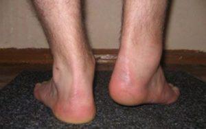После перелома пяточной кости боль при ходьбе, сильная отечность стопы