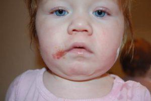 Периоральный дерматит у ребенка
