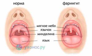 Воспаление на задней стенке горла