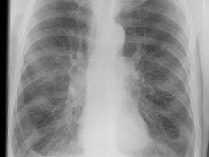Онкология и рентген