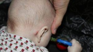 Выпирает кость за ухом у ребенка